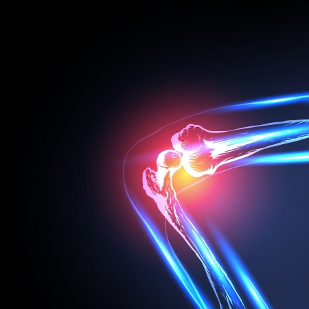 sportmassage: Pijnlijke knie Close-up, eenvoudig alle bewerkbare
