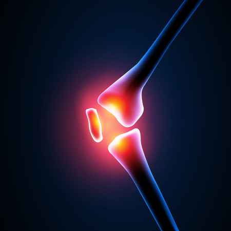 pers: Painful Knee Close-up easy editable Illustration