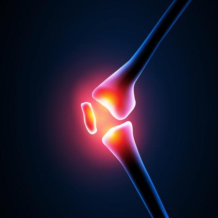 athletes: Painful Knee Close-up easy editable Illustration