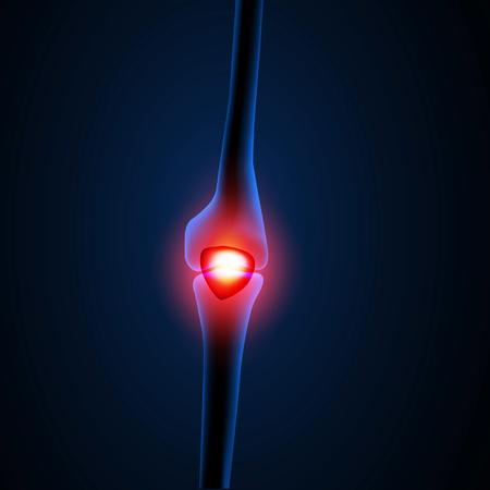 Painful Knee or leg X-ray, easy editable Vektorové ilustrace