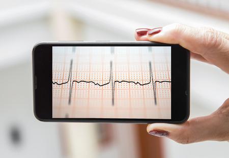 elettrocardiogramma: Cellulare concetto elettrocardiogramma: donna analisi elettrocardiogramma in un telefono cellulare Archivio Fotografico