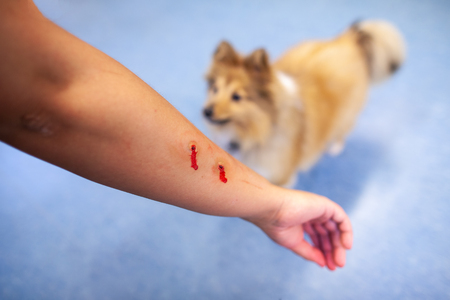 Little Shetland Sheepdog bites into a human arm Banque d'images