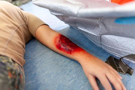 bendaggio di pronto soccorso sulla vittima della ferita bruciata