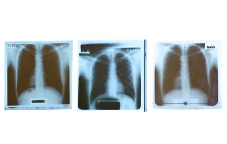 Film x-ray on white background