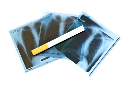 nicotine: Film x-ray and cigarette on white background