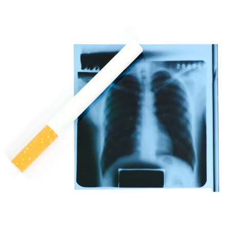 Film x-ray and cigarette on white background