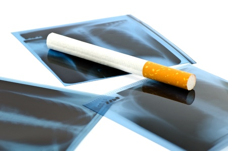 Film x-ray and cigarette on white background Stock Photo - 12876631