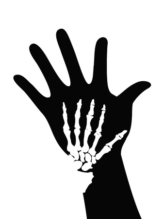 radiation pollution: isolated skeleton on hand on white background