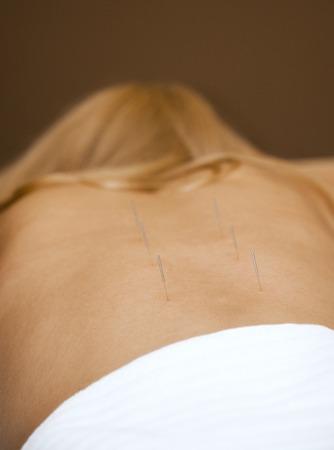 acupuntura china: Terap�utica de acupuntura