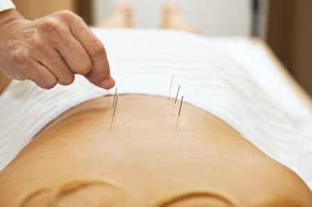 physical therapy: Acupuncture therapy