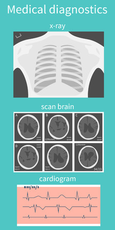 x ray image: Set of medical research: X-ray, CT, MRI brain, cardiogram. Design elements for projects. Vector  illustration, flat design.