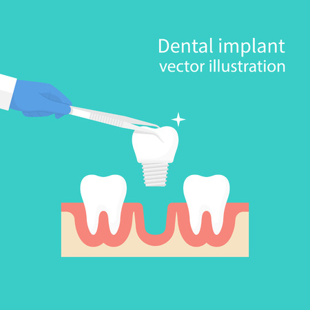 dentures: Dental implant. Dentist holding in hand tweezers sets of dentures. Medical equipment. Tooth treatment. Vector illustration flat design. Isolated on background. Stomatology concept.