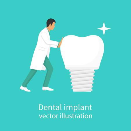 Dental implant vector Illustration