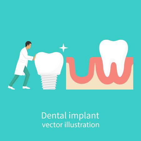 orthodontist: Dental implant in hand dentist Illustration