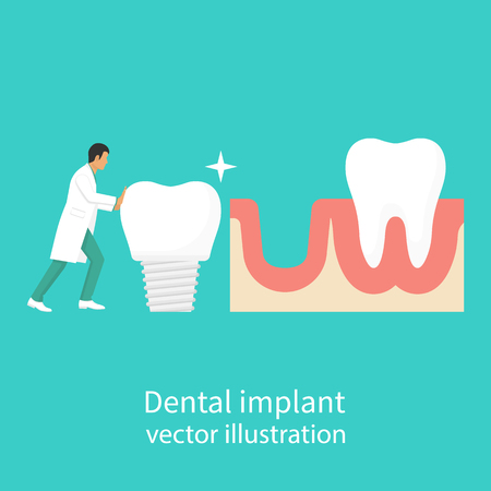 Dental implant in hand dentist Illustration