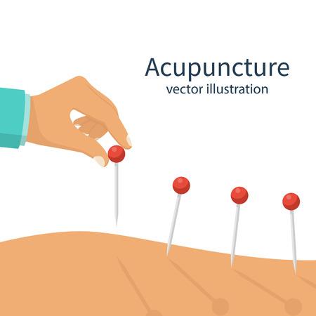 Acupuncture treatment closeup illustration 向量圖像