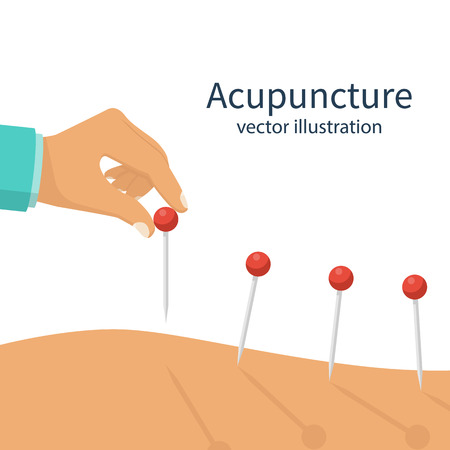 Acupuncture treatment closeup illustration Illustration