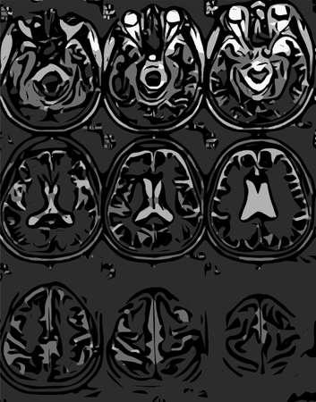 eye balls: collection of X-ray of human skull with eye balls and brain