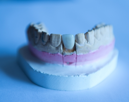 plaster mould: Mould of teeth in plaster in dental prothetic laboratory.