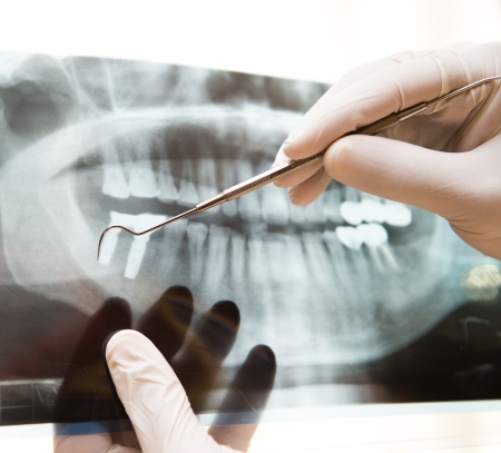 odontologia: Panor�mica dental de rayos X en la mano.