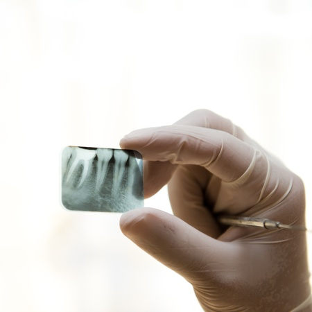 xray: tooth x-ray in dentist hand.