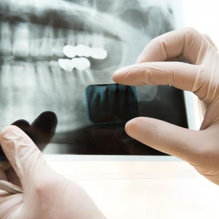 dentista: Panor�mica dental de rayos X en la mano.