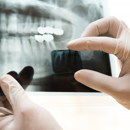 jaw: Panoramic dental X-Ray in hand.