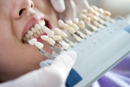 teeth whitening: Choice of color of a dental artificial limb.  Stock Photo