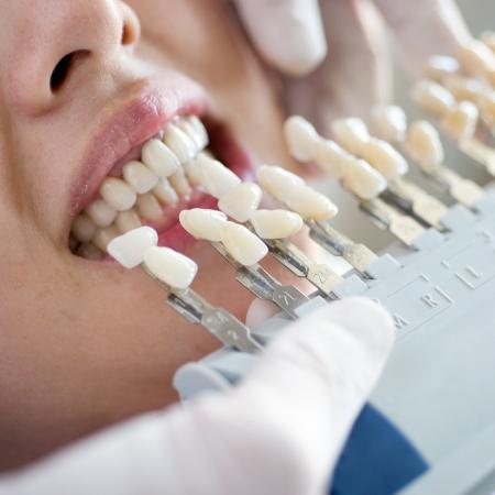 muela: La elecci?n del color de un miembro artificial dental. Foto de archivo