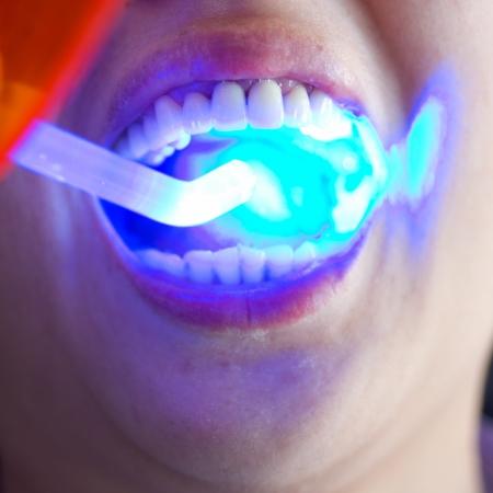dental clinic: Woman during a dental visit.