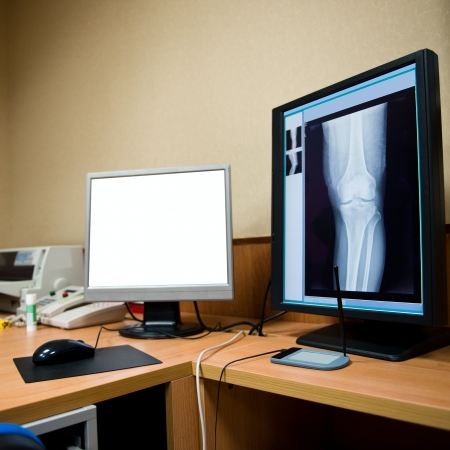 ct scan: X-rays viewed on hospital monitors.