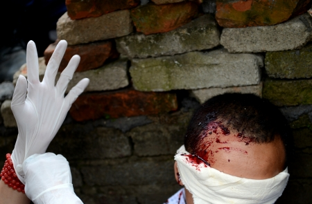 People injured his head, and helping hands with gloves nearby. photo