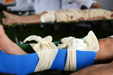 body wound: Many patients with broken leg
