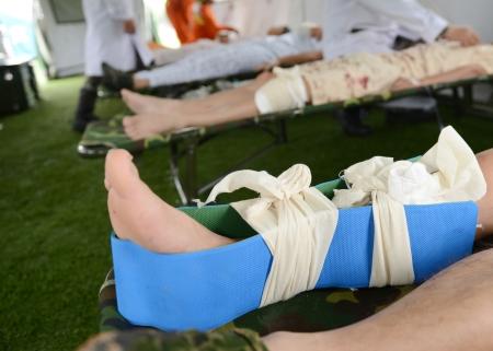 plaster foot: Many patients with broken leg