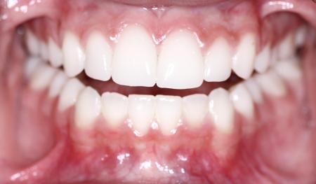반짝 깨끗한 치아