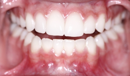 tooth extraction: Sparkling clean teeth
