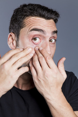 Young handsome man with beard and mustache scratching his eye Stock Photo