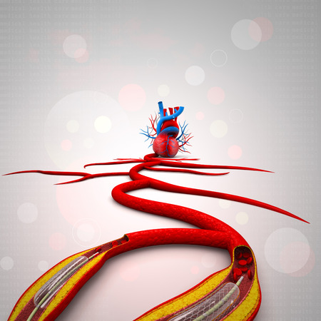 Stent angioplasty procedure with placing a balloon