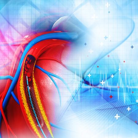 vasos sanguineos: Procedimiento de angioplastia Stent con la colocación de un globo