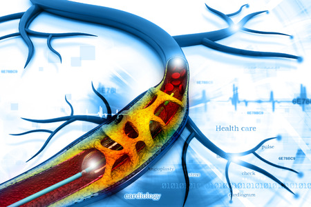 healthy arteries: Stent angioplasty procedure with placing a balloon
