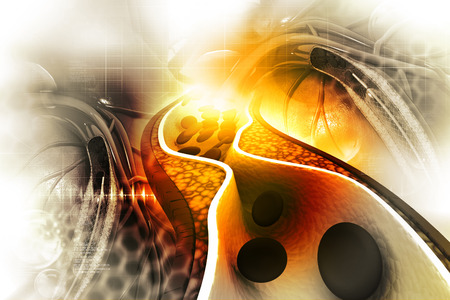 plaque: Cholesterol plaque in artery
