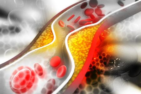 placa bacteriana: Placa de colesterol en las arterias Foto de archivo