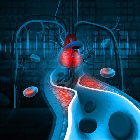動脈内プラークのコレステロール 写真素材