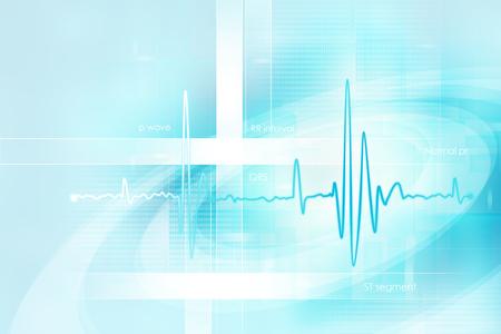 electrocardiograma: fondo de ECG