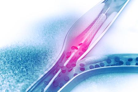 풍선 배치를 통한 스텐트 혈관 성형술