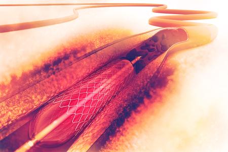 Stent-angioplastie procedure bij het plaatsen van een ballon Stockfoto - 74620132
