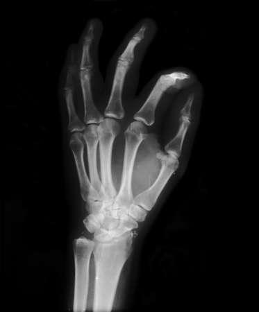 Left hand radiography and OK symbol photo