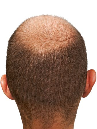 Bald hair head of adult men completely balding photo