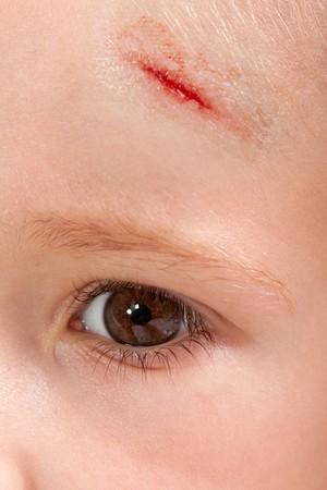 wound: Physical injury blood wound skin human child pain