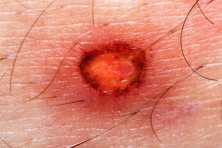 ulc�re: Blessure sang blessure peau humaine br�lage douleur  Banque d'images